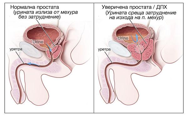 prostata-hyperplasia